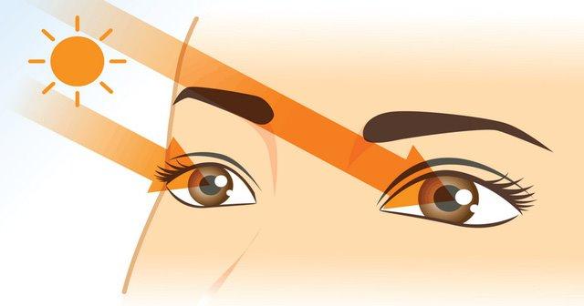 Bệnh về mắt - cần lưu ý khi nắng nóng